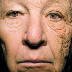 Verouderde huid door UV-A straling.